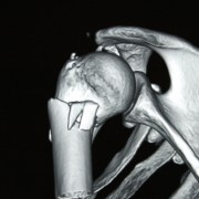 Fractura de Cuello Quirúrgico