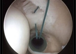 Secuencia en la reparación artroscópica de Rotura Parcial de Manguito