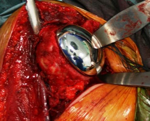 Visión intraoperatoria de Prótesis Parcial de Hombro