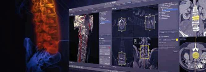 navegacion-vertebral