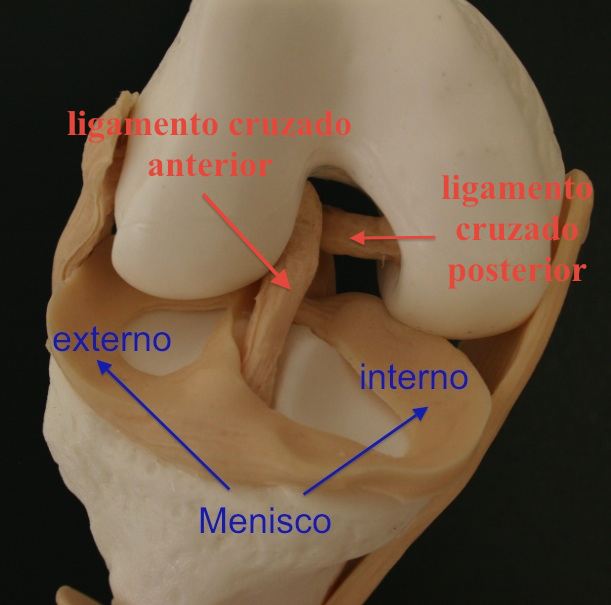 Clínica Traumacor | Traumatólogos Coruña | Rotura del ligamento ...
