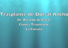 Trasplante de Dorsal Ancho