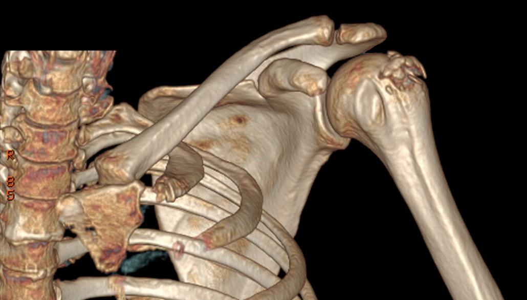 dolor-de-hombro-fractura-de-troquiter