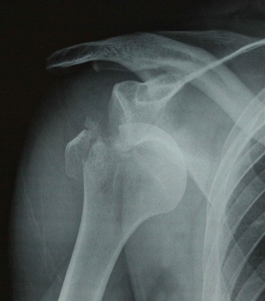 troquiter-fractura-traumatologos-en-a-coruna