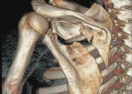Las principales causas del dolor en la clavícula y cuello son el estrés y la ansiedad