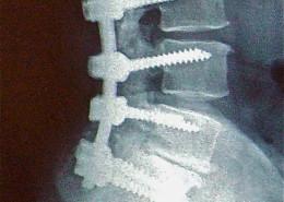 artrodesis-rx-lumbar