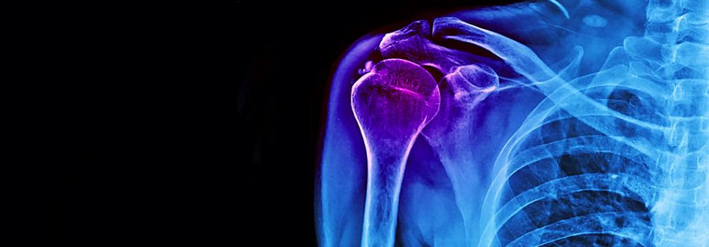 Cuál es el tiempo de baja por una capsulitis de hombro