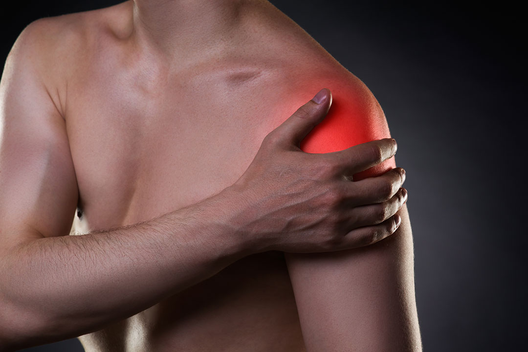 causas y efectos de la capsulitis de hombro
