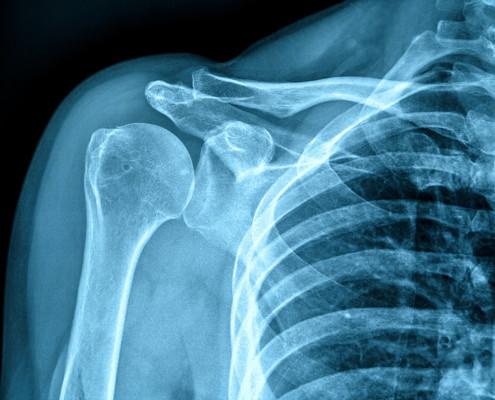 Como mejorar una fractura de humero con ejercicios de rehabilitación